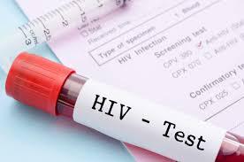 Qual o profissional habilitado e a estrutura necessária para realizar os testes rápidos de HIV, sífilis e hepatites virais B e C?
